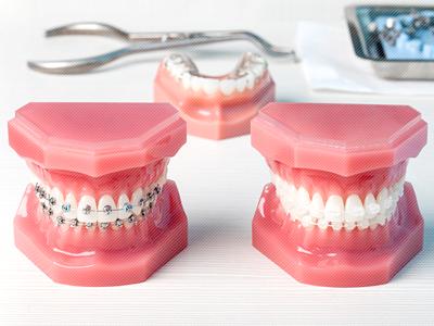 世界舌側矯正歯科学会認定医